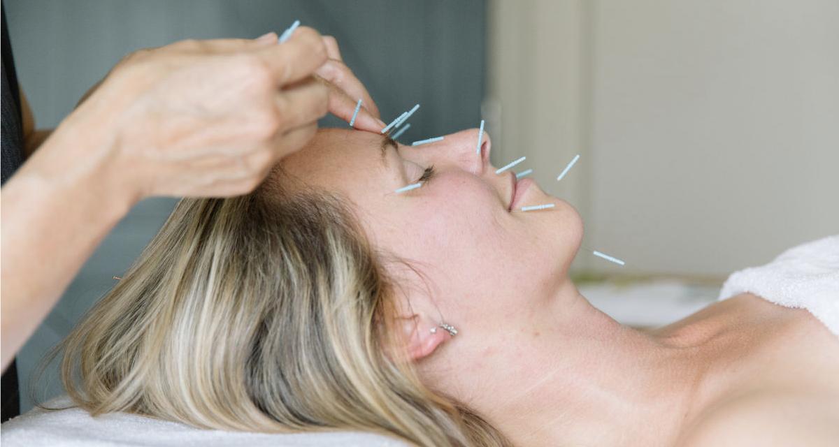 Лифтинг лица иглоукалыванием (восточная косметология) в клинике Чжуд-Ши